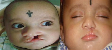 Cleft Lip Charity We Work Free Cleft Palate Lip Surgery India Care Foundation