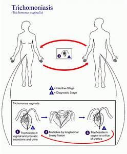 Trichomoniasis Symptoms in Men and Women by Dr. Eist