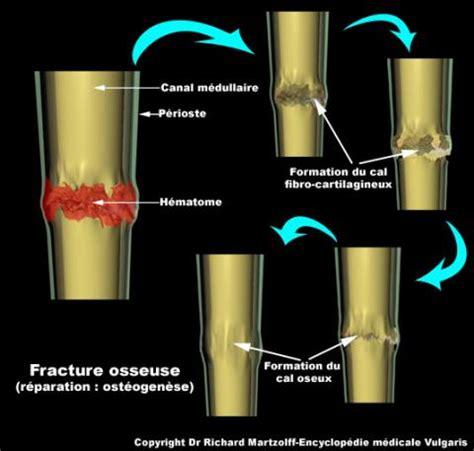 jeux bureau image photo fracture osseuse os et muscles vulgaris