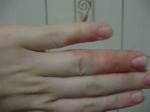 Лечение каплевидный псориаз