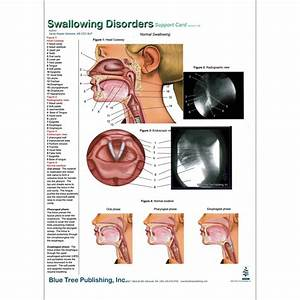 Swallowing Disorders Anatomical Chart