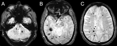 susceptibility weighted imaging  familial cerebral