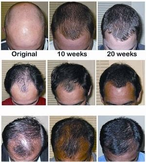 Does Propecia or Finasteride Work? - Quora