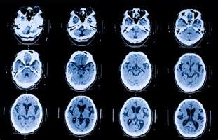 how much is a cat scan can ct scans give you cancer salon