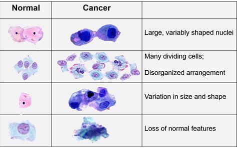 biology  cancer