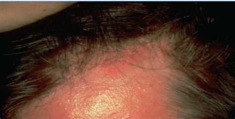 psoriasis en andere erythematosquameuze dermatosen