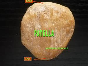 Patella  Kneecap  Is Not A Weight Bearing Bone