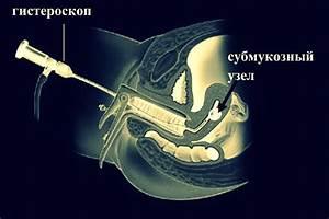 Лечение после операции аденомы простаты