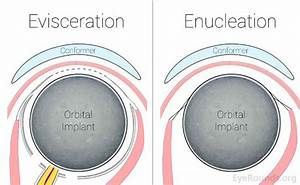 Enucleation And Evisceration  What To Expect