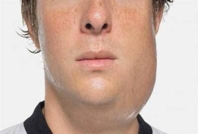 Parotitis: Symptoms, Causes, Treatment | UtoDent.com