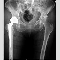 Extensive Gluteal Haematoma After An Intracapsular Hip