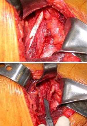 piriformis syndrome treatment sciatica pain treatment