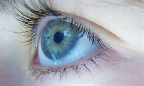 Kā cīnīties ar alerģiskiem acu iekaisumiem? - Veselība ...