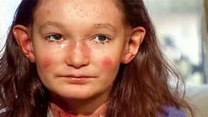 Les Yeux Les Plus Rare : cette petite fille souffre d 39 une rare maladie de peau elle a re u le plus beau soutien qui soit ~ Nature-et-papiers.com Idées de Décoration
