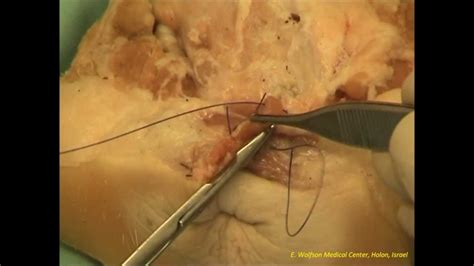tutorial repair   degree perineal tearpig model