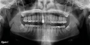 Symptome Dent De Sagesse : livremdical ~ Maxctalentgroup.com Avis de Voitures