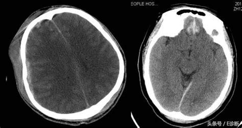 慢性 硬 膜 下 血腫 後遺症