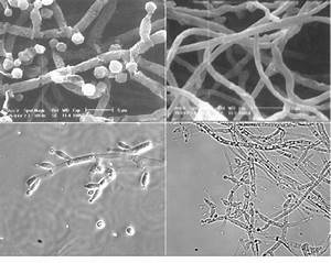 Trichoderma Harzianum Cect 2413 As Examined By Electron  Top  And Light