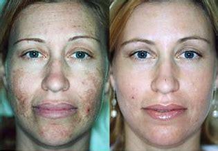 ipl photofacial  facial rejuvenation
