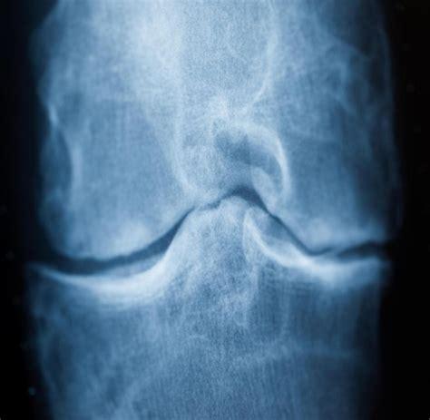 darum bekommt man arthrose und das hilft dagegen welt
