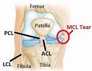 Medial Knee Pain  Anterior  Flexion  Running  Causes