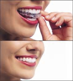 Invisalign Cost Estimate by Cheap Orthodontics Is It Possible Intelligent Dental