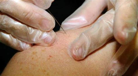 Coronavirus could cause these five skin conditions: Study ...
