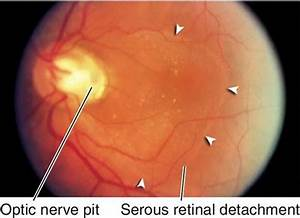 Optic Nerve and Glaucoma - The Massachusetts Eye and Ear ...