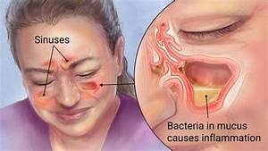 What Is The Best Way To Cure Chronic Sinus Problems