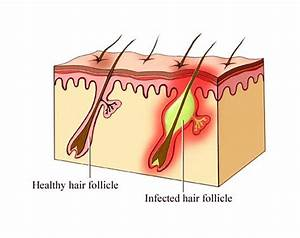 Ingrown hair - Pictures, Treatment, Removal and Causes