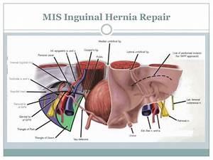 Hernia Repair   PkHowto