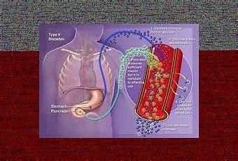 la diabetes se pueda curar   injerto celular paperblog