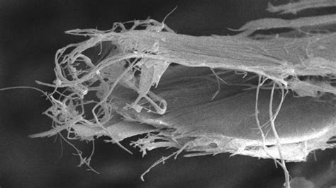 Study sheds new light on asbestos-related cancer | Cancer