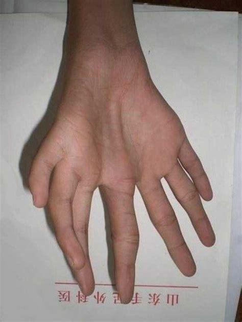 bizarre  human hands  feet klykercom