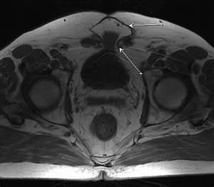 Реферат на тему лечение псориаза