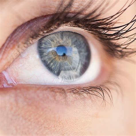 reve de cuisine une opération laser pour avoir les yeux bleus