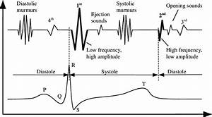 Schematic Representation Of The Heart Sounds In Relation