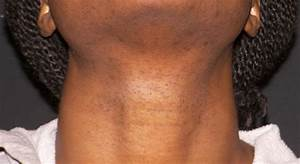 Laser Hair Removal  All Skin Types   U2013 Dulwich Laser