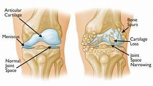 Knee Osteoarthritis - An Overview