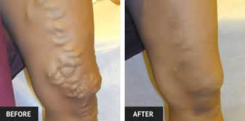 stages  vein disease laser lipo