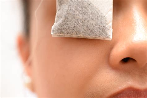 How To Treat Eye Infection Naturally 3 Steps With Pictures