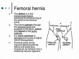 Diagram Of Femoral Hernia