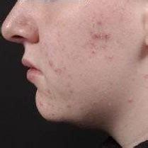 acne vulgaris symptoms diagnosis  treatment bmj