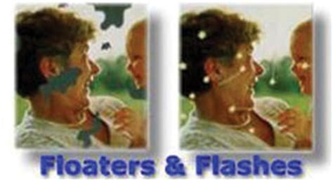 seeing flashes of light green apple eye care retina treatment for floaters