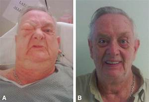 Transient Facial Subcutaneous Emphysema  An Unusual Complication Of Liquid Nitrogen Spray