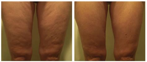 contour light body sculpting before and after lipo light body contouring iron blog