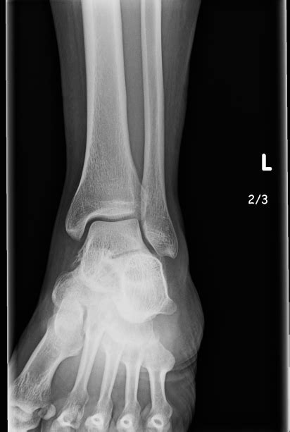 ankle left having need rays opinion issues husband few second please years patient forums