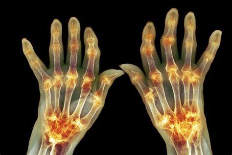 Can you prevent rheumatoid arthritis