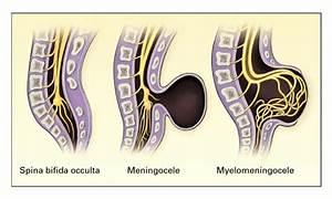 Neural Tube Defects - Humpath Com