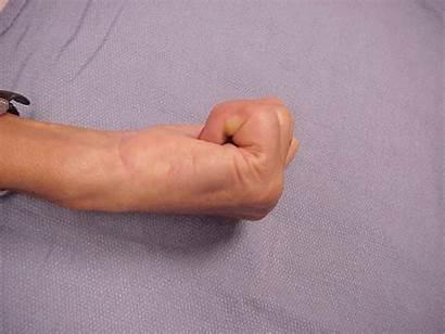 Hand Finger Deformity Neck Swan Fasciectomy Palmar